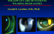 Follow-up Care of Patients Wearing Rigid Contact Lenses