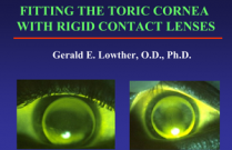 Fitting the Toric Cornea with Rigid Contact Lenses