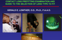 Contact Lens Pre-fitting Examination and Guide to the Selection of Lens Type to Fit