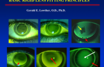 Basic Rigid Lens Fitting Principles