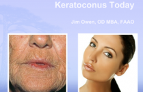 Advances in Keratoconus Treatment
