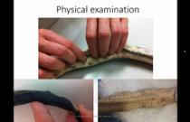 B-1008 Gillett - Sea Snake Medicine
