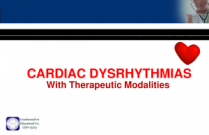 Cardiac Dysrythmia with Therapeutic Modalities