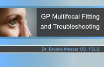 GP Multifocal Fitting and Troubleshooting