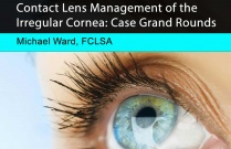 Contact Lens Management of the Irregular Cornea: Case Grand Rounds