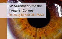GP Multifocals for the Irregular Cornea