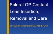 Scleral GP Contact Lens Insertion, Removal and Care