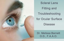 Scleral Lens Fitting and Troubleshooting for Ocular Surface Disease