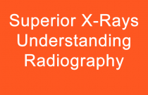 Superior X-Rays Understanding Radiography