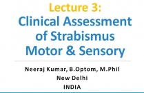 Lecture 3: Clinical Assessment of Strabismus Motor & Sensory