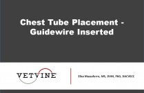 Chest Tube Placement - Guidewire Inserted