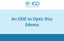 An ODE to Optic Disc Edema