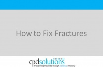 How to Fix Fractures