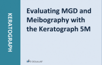 Evaluating MGD and Meibography with the Keratograph 5M