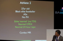 Differentiating Athlete's Hearts from Cardiomyopathies