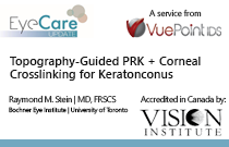 Topography-Guided PRK + Corneal Crosslinking for Keratoconus