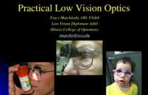 Practical Low Vision Optics