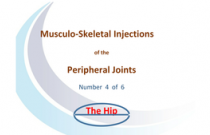 Injection around the hip