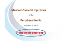 Injections around the ankle and foot