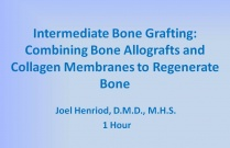 Intermediate Bone Grafting: Combining Bone Allografts and Collagen Membranes to Regenerate Bone