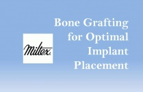 Bone Grafting for Optimal Implant Placement