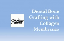 Dental Bone Grafting with Collagen Membranes
