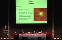 Le Glaucome à Angle Ouvert - C.O.C. 2014 - AOF