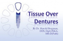 Course 7 : Tissue Over Dentures