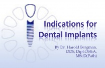 Course 17: Indications for Dental Implants
