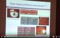 Freination de la myopie en DRL lentille de nuit - C.O.C. 2017 - AOF