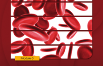Anemia and Kidney Disease: Kidney School Module 6