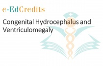 Congenital Hydrocephalus and Ventriculomegaly