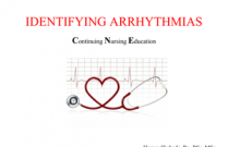 Identifying Arrhythmia (Part II- Tachydysrhythmias)