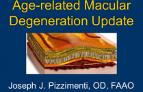 Age-related Macular Degeneration Update
