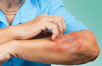 Skin Infections in Long Term Care