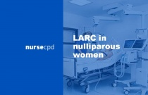 LARC in nulliparous women