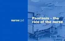 Psoriasis — the role of the nurse
