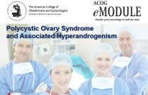 Polycystic Ovary Syndrome and Associated Hyperandrogenism