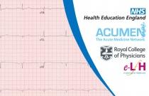 ECG Interpretation in the Bradycardic Patient