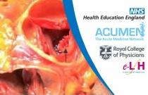 Diagnosis of Endocarditis