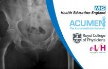 Criteria for Diagnosing Osteoporosis