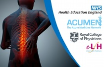 Management of Acute Back Pain