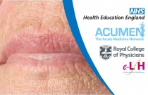 Management of Sore Mouth and Other Oral Problems vin Palliative Care