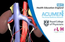 Investigation and Management of Acute Kidney Injury