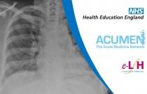 Common Causes of Pulmonary Diseases