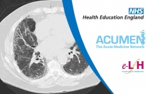 Investigation and Management of Interstitial Lung Disease