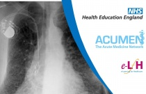 Interstitial Lung Disease and the Acute Medical Take