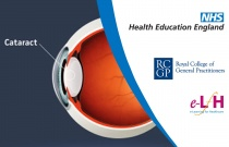 Cataracts Presentation Referral and Post-op Care