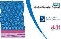 Cervical Cancer and Human Papillomavirus (HPV)