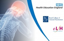 Head Injuries: Assessment and Management in Primary Care